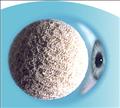 Intergrated Orbital Implant