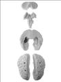 Neurosurgical Head Training Model